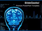 Brain Mri Medical PowerPoint Template 0610