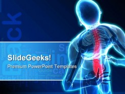 Back Pain Medical PowerPoint Template 0610