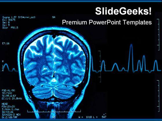 BrainMriMedicalPowerpointTemplateJpg